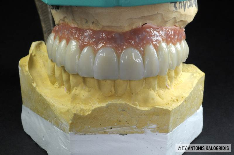 FULL UPPER JAW SCREW RETAINED RESTORATION (SR Nexco)
